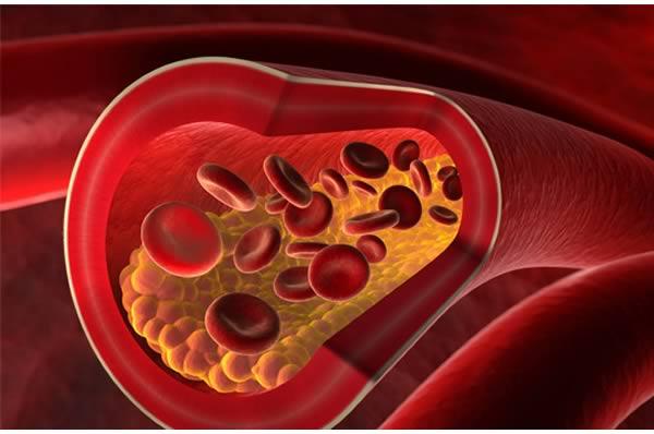 los problemas del colesterol